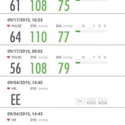Máy đo điện tâm đồ Beurer ME90